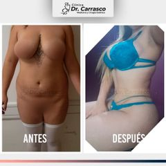 Lipoescultura Full: Antes y Despues
