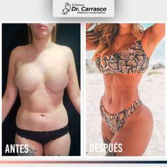 Lipoescultura HD de Abdomen y Cintura con Transferencia a glúteos - Dr. Freddy Carrasco