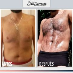 Marcación Abdominal - Dr. Freddy Carrasco