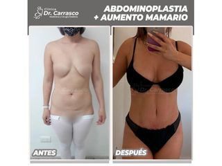 Abdominoplastia - Dr. Freddy Carrasco