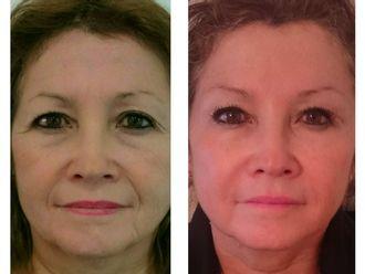 Rejuvenecimiento facial-524369