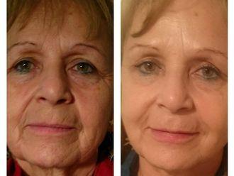 Rejuvenecimiento facial-524371