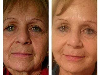 Rejuvenecimiento facial 3D