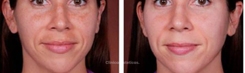 Antes y despues de mesoterapia facial