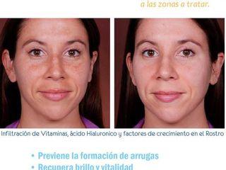 Antes y despues de mesoterapia facial
