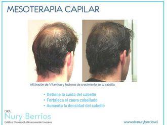 Mesoterapia - 597784