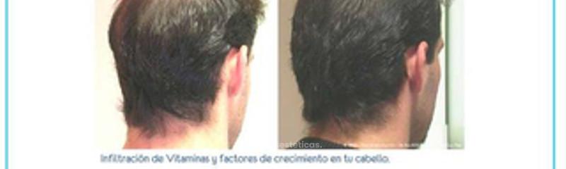 Antes y despues de mesoterapia capilar