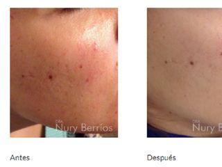 Antes y despues de peeling y mesoterapia