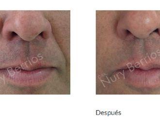 Rejuvenecimiento facial-597795