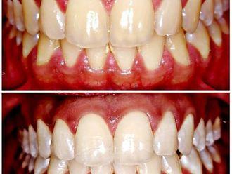 Blanquear dientes-642677
