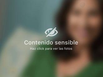 Vitiligo - 499321