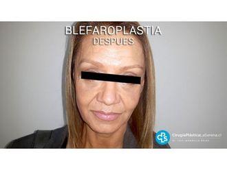 Blefaroplastia-650979