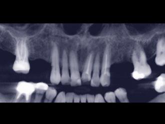 Implantes dentales-648356