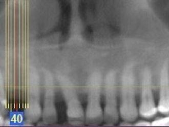 Implantes dentales-648358