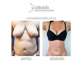 Lipoabdomindoplastia - Dr. Gustavo Rene Sotillo Ochoa