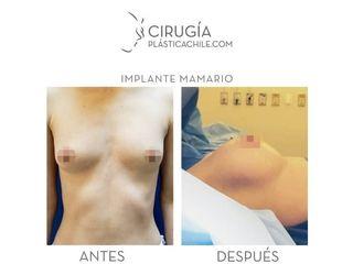 Aumento mamario - Dr. Gustavo Rene Sotillo Ochoa