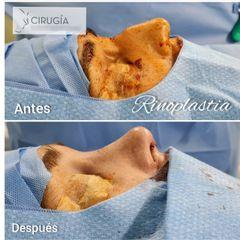 Rinoplastia - Dr. Gustavo Rene Sotillo Ochoa