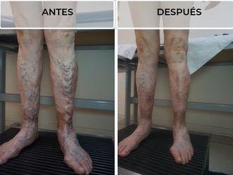 Tratamiento de varices - 638572