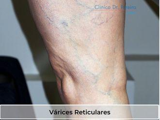 Tratamiento de varices - 638574