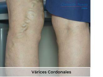 Tratamiento de varices - 638576
