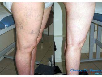 Tratamiento de varices - 639044
