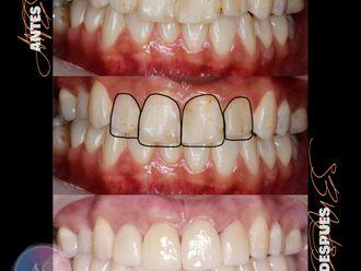 Implantes dentales-787081