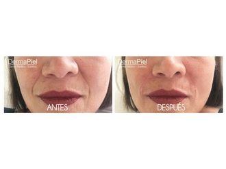 Rejuvenecimiento facial-577893