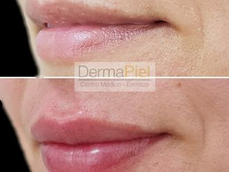 Aumento de labios - 638258
