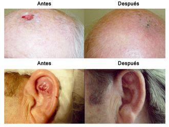 Psoriasis - 498532