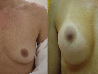 Antes y despues de implante mamario