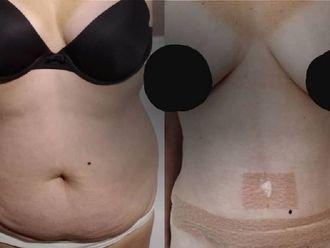 Abdominoplastia - 797267