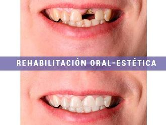 Implantes dentales - 573505