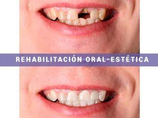 Rehabilitacion oral - estetica