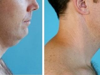 Antes y despues de liposuccion de papada con el metodo vaser