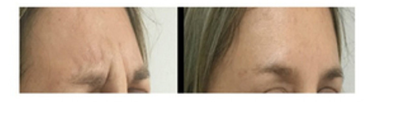Entrecejo Botox