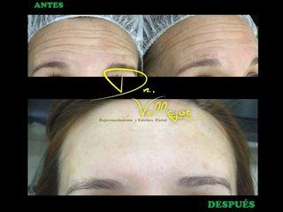 Tratamiento con Botox en la frente