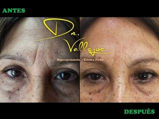 Tratamiento con Botox en Entrecejo