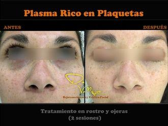Plasma rico en plaquetas-625042