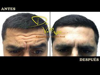 Botox en hombres en el entrecejo
