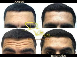 Botox en hombres en las arrugas de la frente