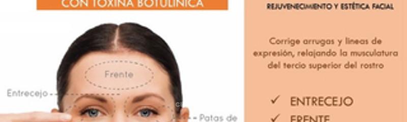 Tratamiento para arrugas y líneas de expresión con Botox®