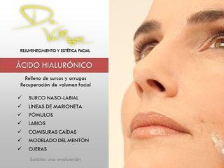 Tratamientos con ácido hialurónico