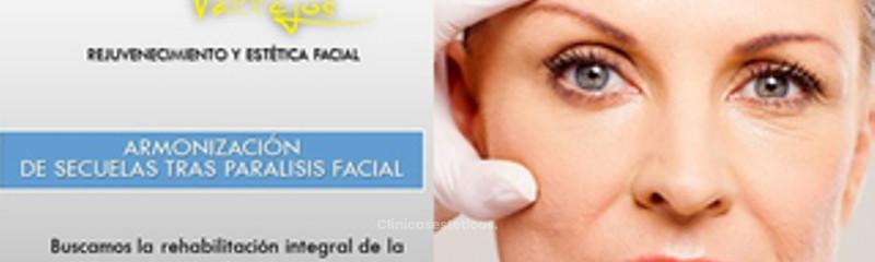 8_Paralisis Facial Armonizacion de secueles esteticas.jpg