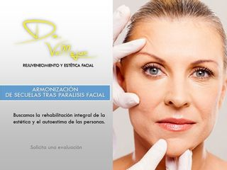 Paralisis Facial Armonizacion de secueles esteticas