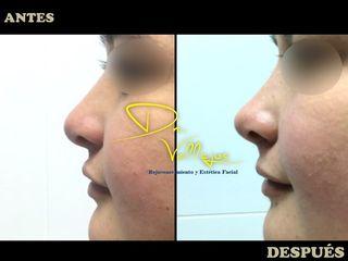 Dr. Julio Vallejos Rejuvenecimiento y Estética Facial