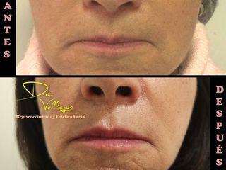 Aumento de volumen y perfilado labial