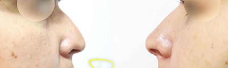 rino coni.jpg