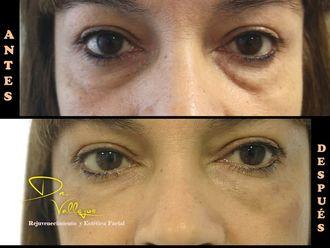 Tratamiento de ojeras - 633375