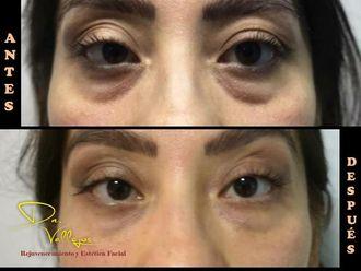 Tratamiento de ojeras - 633933