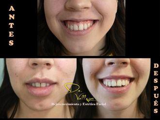 Aumento de labios - 633938